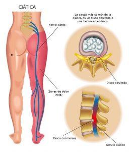 Osteopatia en Valencia